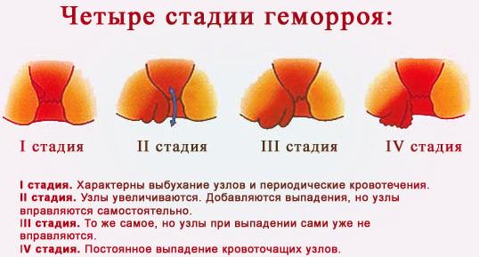 чай от паразитов в организме